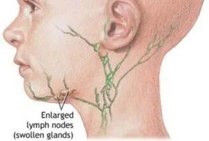 Подчелюстные лимфоузлы увеличены причины лечение