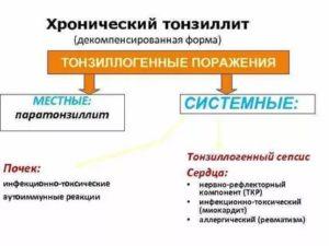 Декомпенсированная форма тонзиллита
