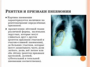 Рентгенологические признаки пневмонии