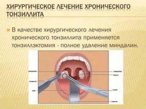 Хронический тонзиллофарингит лечение