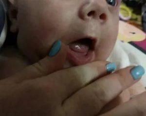 Новорожденный давится слюной