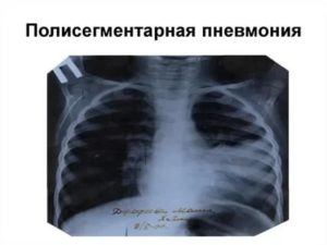 Правосторонняя полисегментарная пневмония
