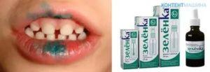 Можно ли мазать зеленкой во рту