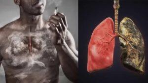 Жжение в легких после курения