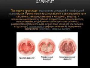 Психосоматика фарингит
