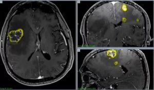 Рак легких с метастазами в головной мозг