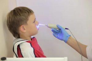 Физиотерапия при насморке у детей