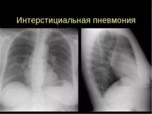Интерстициальный пневмонит симптомы