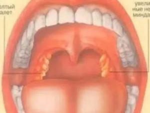 При кашле привкус гноя во рту
