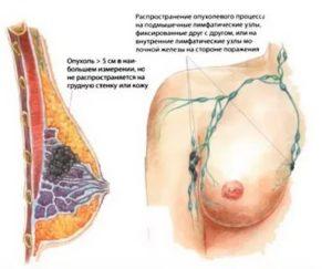 Как йод влияет на молочные железы