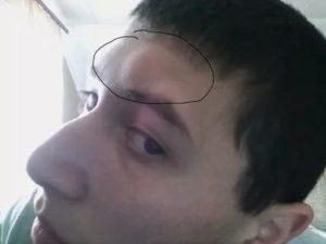 Опух лоб над бровями