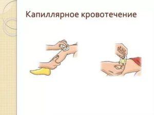 Как остановить капиллярное кровотечение