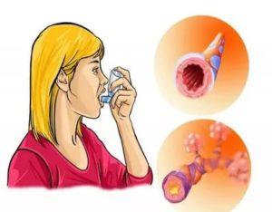 Приобретенная бронхиальная астма