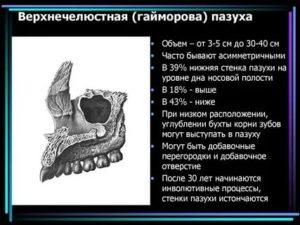 Строение гайморовой пазухи анатомия