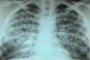 Диссеминированный туберкулез легких в фазе инфильтрации