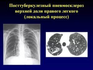 Посттуберкулезный пневмофиброз