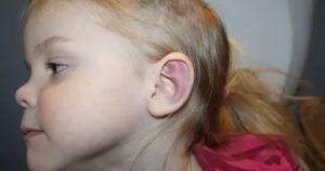 Ушиб уха у ребенка
