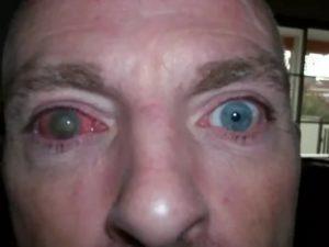 Вытек глаз у человека