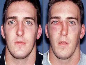 Перелом носа какой вред здоровью