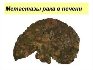 Рак легкого с метастазами в печень