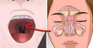 Синусит запах изо рта
