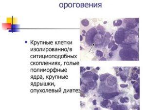 Плоскоклеточный рак без ороговения