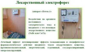 Электрофорез с хлористым кальцием при бронхите