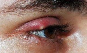 Простуда на глазу как лечить