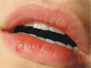 Болячка на губе но не герпес фото