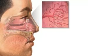 Слабые сосуды в носу лечение