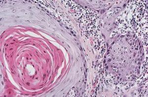 Железисто плоскоклеточный рак легкого