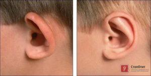 У ребенка разные уши причина