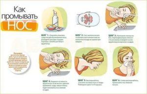 Как правильно сморкаться при гайморите