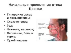 Симптомы отека квинке гортани