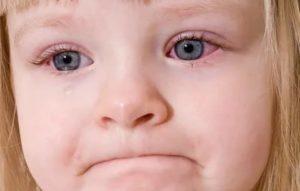Красные глаза у ребенка при простуде