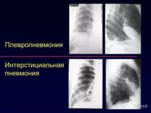 Плевропневмония симптомы и лечение