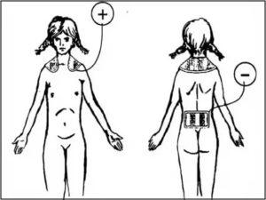Электрофорез с бромом на воротниковую зону показания