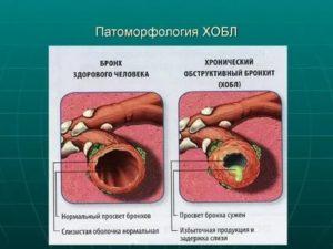 Неизлечимая болезнь легких
