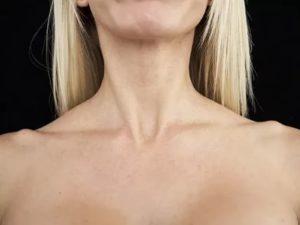 Надключичные лимфоузлы увеличены фото