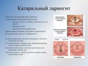 Узлы на голосовых связках симптомы