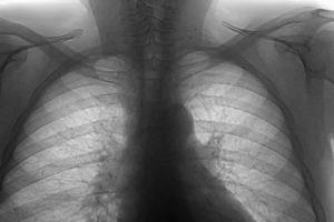 Флюорография лёгких фото