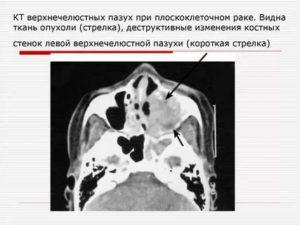 Гиперплазия слизистой верхнечелюстных пазух