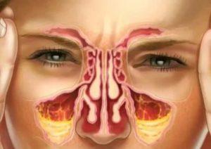 Правосторонний гайморит симптомы