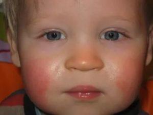 Красные щеки у ребенка причины комаровский