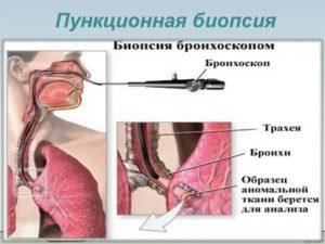 Биопсия легкого как делают