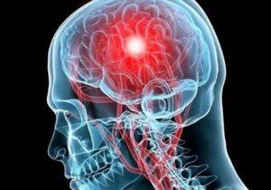 Полипы в головном мозге