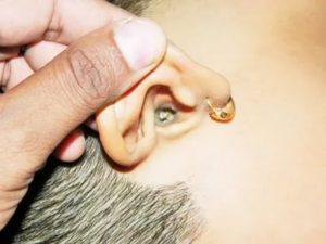 Откуда появляется ушная сера