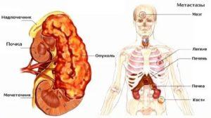 Рак почки метастазы в легкие сколько живут