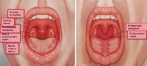 Чем обрабатывать горло при ангине ребенку