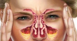 Заложенность одной ноздри